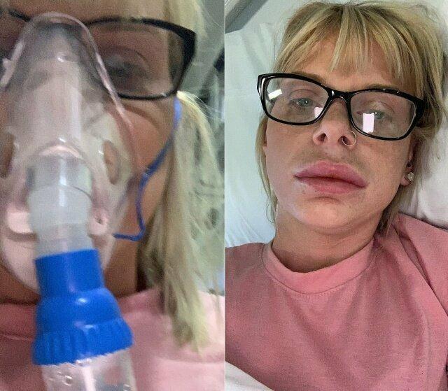 Когда аллергия стоит на страже твоей естественной красоты