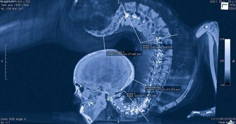 Позвоночник акробата на рентгеновском снимке