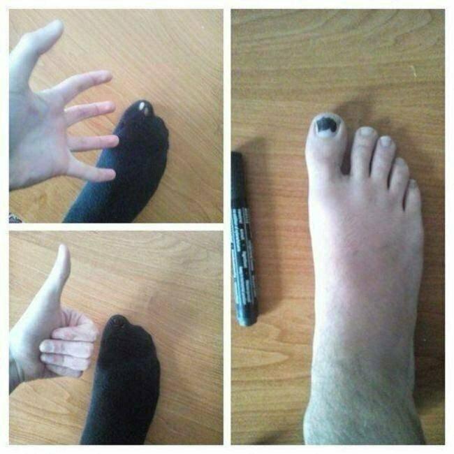 Когда некогда зашивать носок креатив, мышление, проблемы, решение, смекалка, фото
