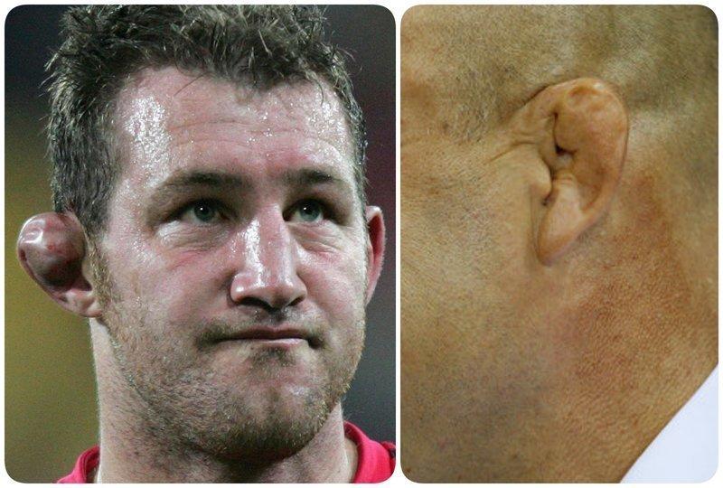2. В вольной борьбе (и в регби) отличительной травмой являются сломанные уши