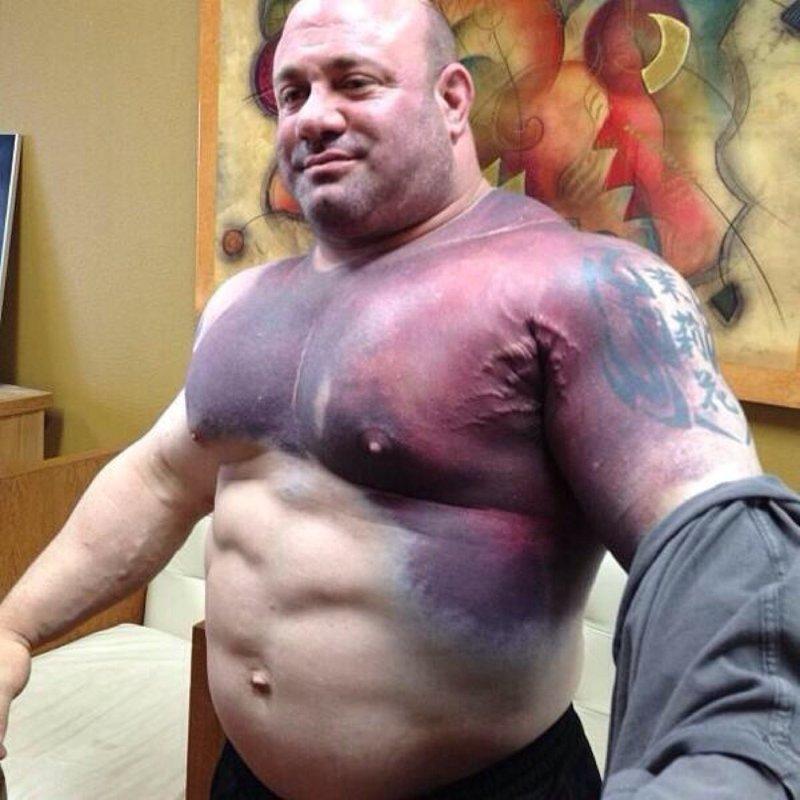 4. Скотт Мендельсон после попытки установить мировой рекорд в жиме лежа порвал мышцы