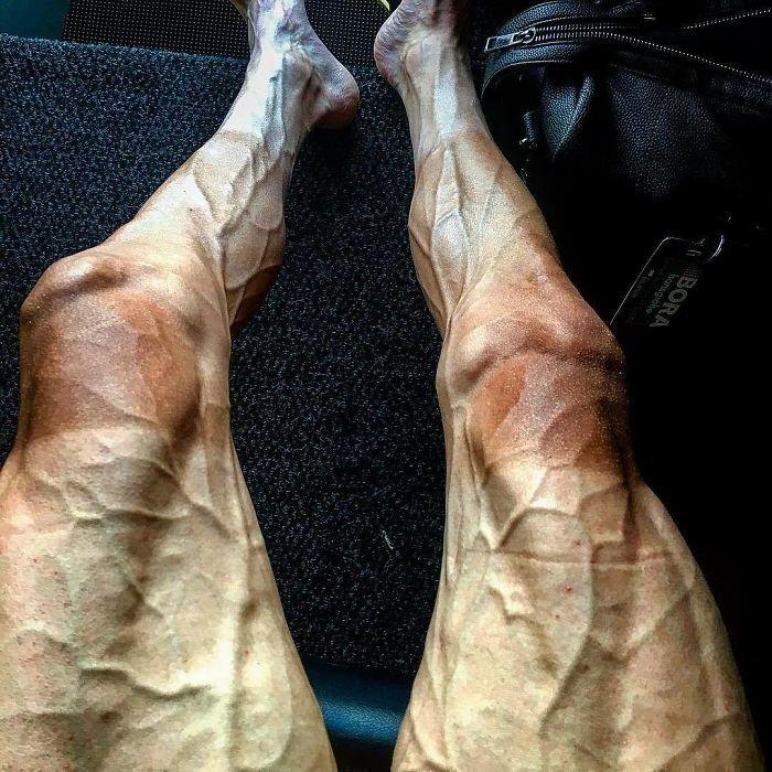 """Ноги велосипедиста после """"Тур де Франс"""" (велогонка длиной 3000-4000 км)"""