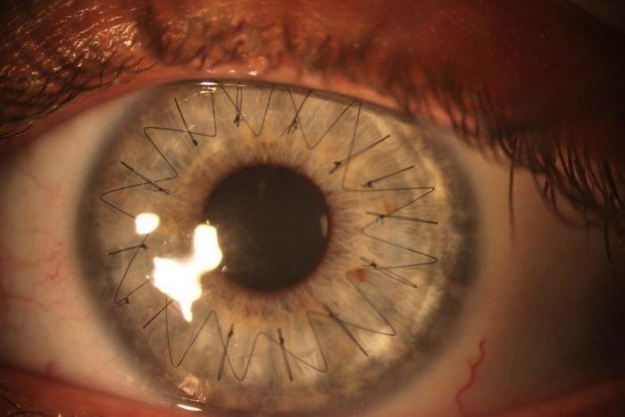 Вот так выглядит глаз после операции по пересадке роговицы