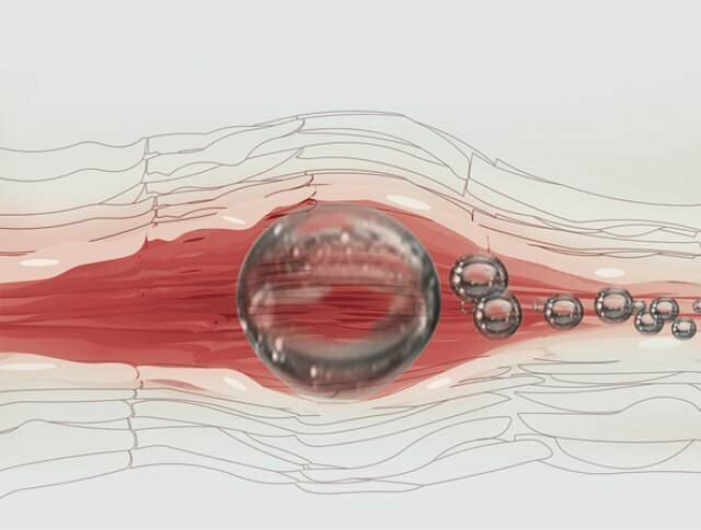 Как избежать неприятных последствий внутривенных инъекций