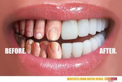 Были ноги - стали зубы?