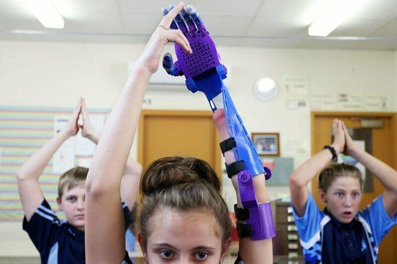 5. 12-летняя Хейли Райт тестирует 3D-протез, сделанный из переработанного пластика
