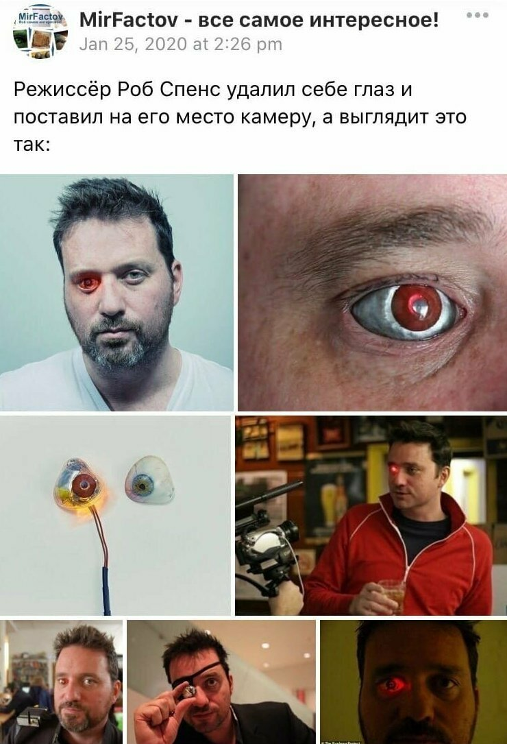 Он потерял глаз в результате несчастного случая, а не удалил. Все остальное правда