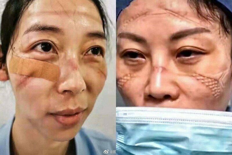 Медики из Китая показали свои лица под конец рабочего дня
