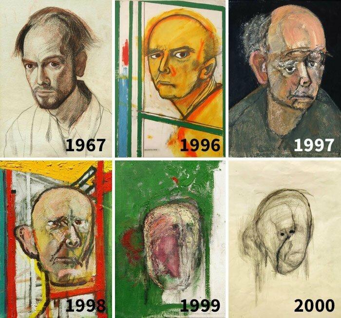 Автопортреты художника Уильяма Утермолена с прогрессирующей болезнью Альцгеймера