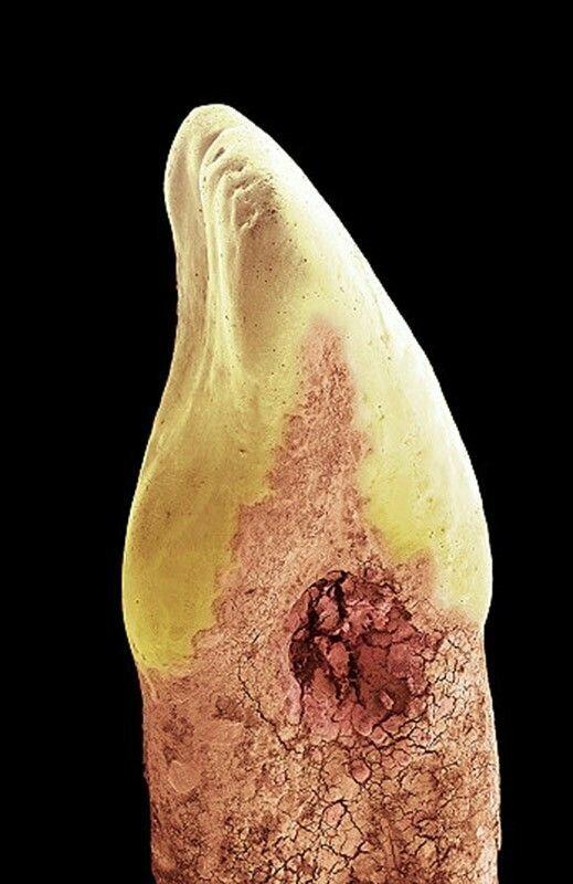 Человеческий резец с дуплом или потерей минералов, вызванной кислотным бактериальным «мусором».