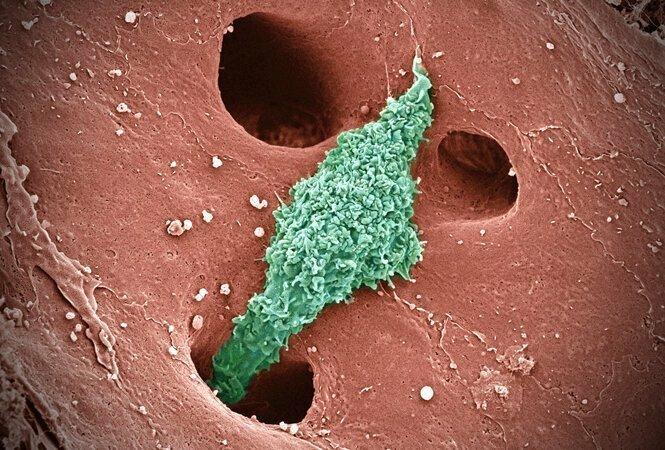 Клетки Купфера - печень. Основной функцией клеток Купфера является захват и переработка старых нефункциональных клеток крови.