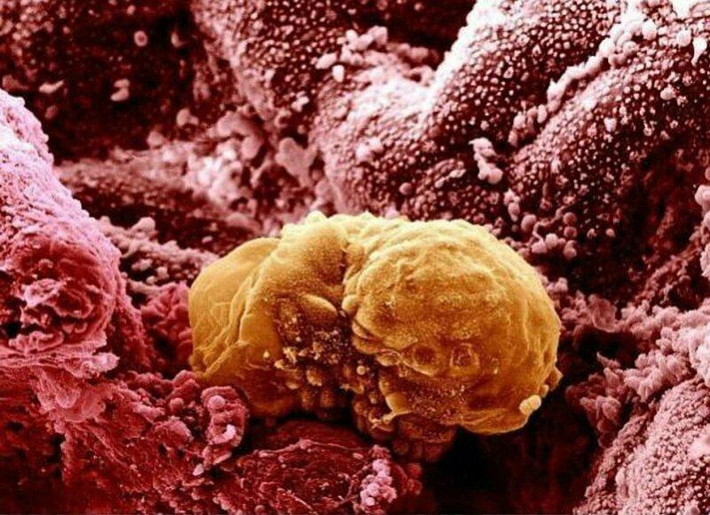 Человеческий зародыш возрастом 6 дней