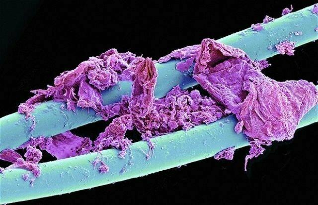 Использованная зубная нить