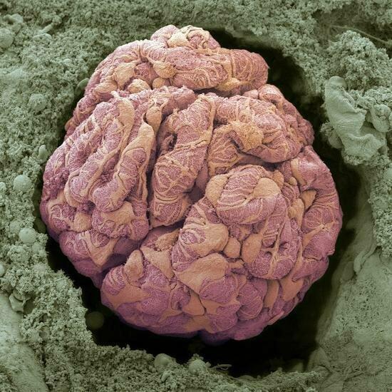 Почечное тельце, которое состоит из клубочка и капсулы Боумена — Шумлянского. Здесь осуществляется ультрафильтрация плазмы крови, которая приводит к образованию первичной мочи