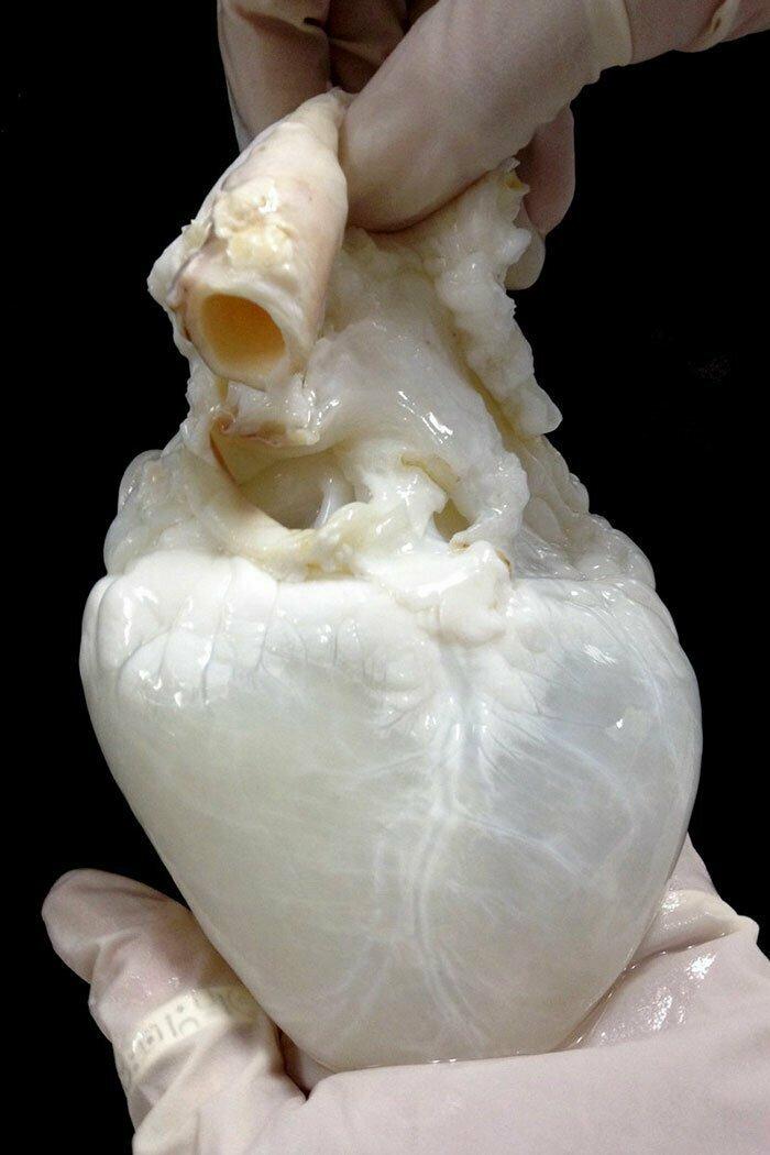 Так выглядит отмытое от крови сердце
