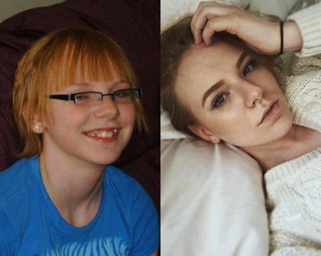 6. Понадобилось подрасти, сменить очки на линзы, нанести макияж - и гадкий 13-летний утенок стал 20-летним лебедем