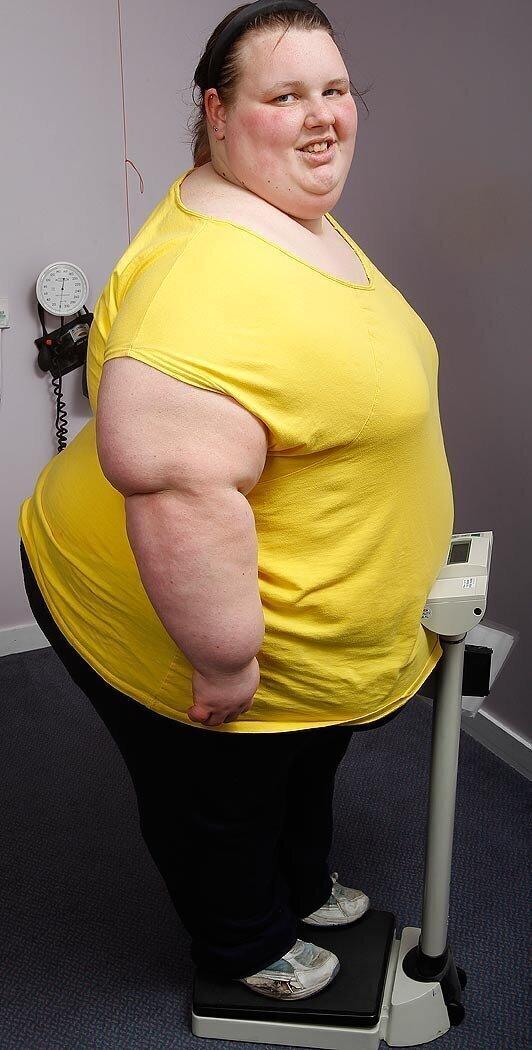 Девушку зовут Джорджия Дэвис - и она рекордсменка книги Гиннесса как самый толстый подросток Британии - вес ее в 19 был более 400 кг.