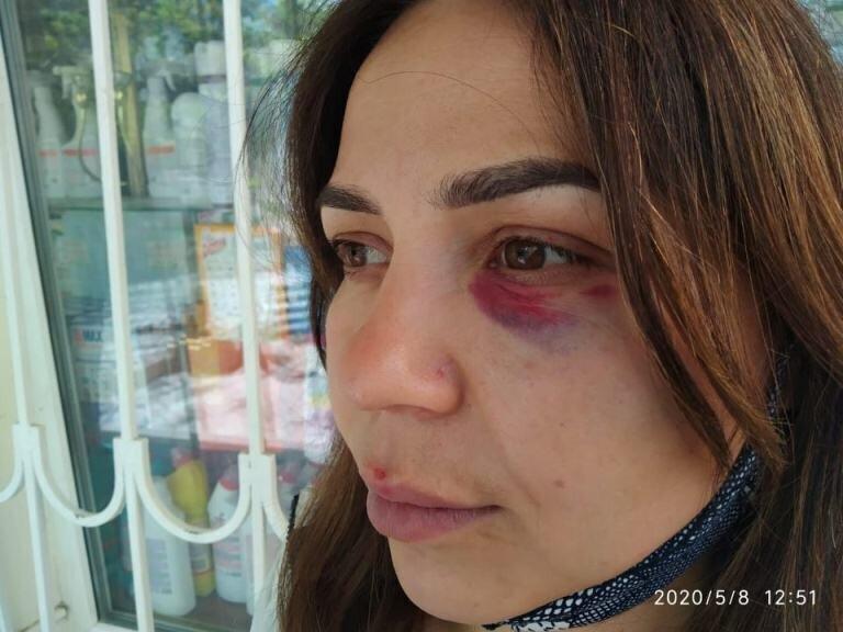 Тренер по ММА избил продавщицу в Крыму за требование надеть маску