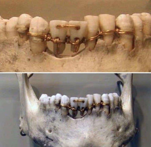 Стоматологическая работа, который 4000 лет
