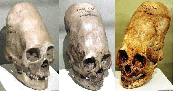 Реальный череп человека, найденный в Латинской Америке. Выглядит он так из-за древней культуры, практиковавшей деформацию черепа