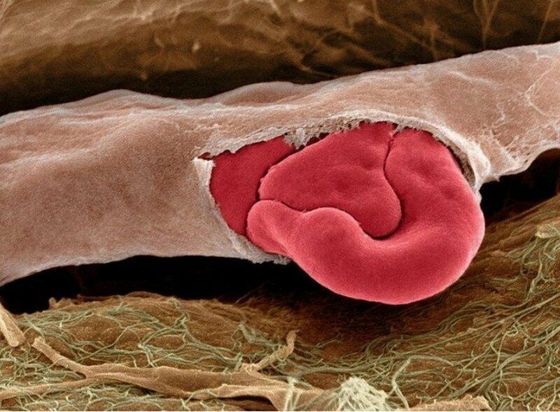 А это - поврежденный капилляр с красными кровяными тельцами внутри