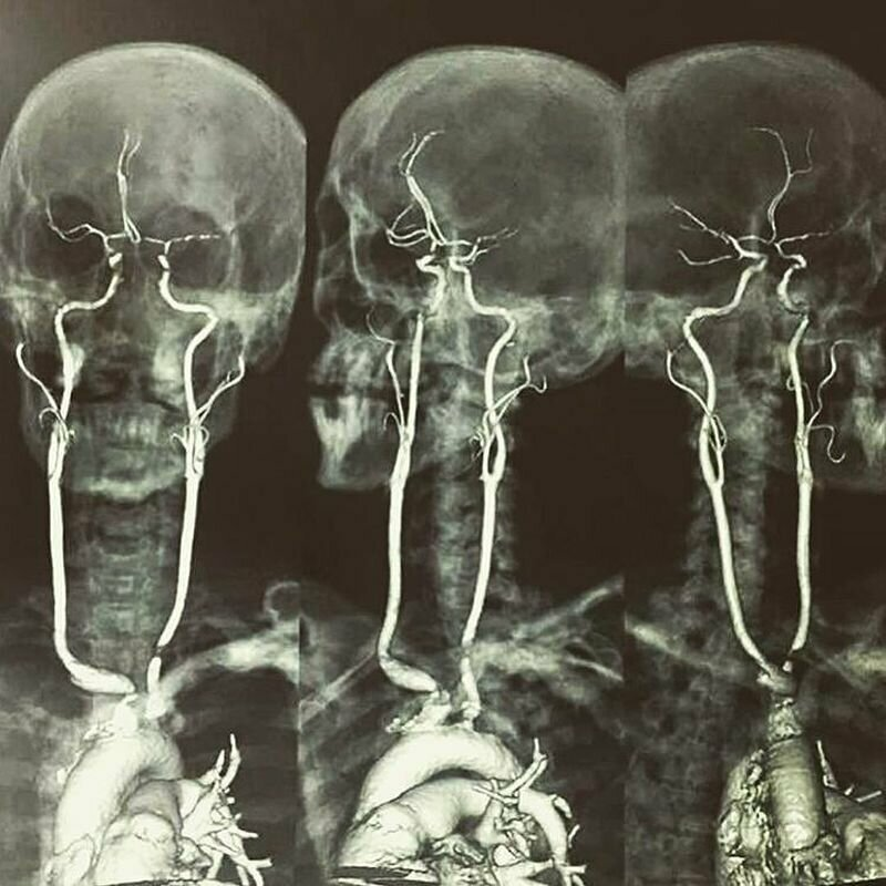 Так выглядят те самые сонные артерии, повреждение которых чаще всего заканчивается фатальным исходом