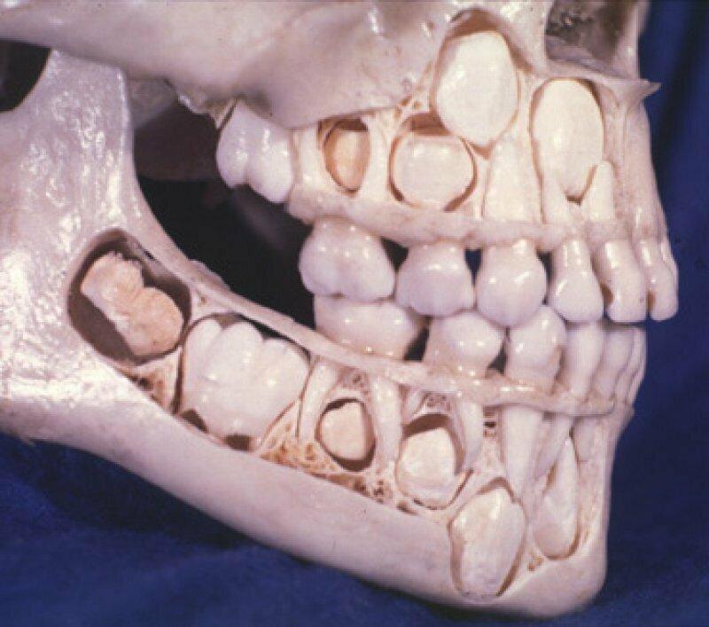 Череп ребенка до момента смены молочных зубов на постоянные