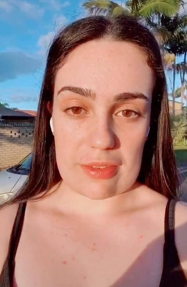 Косметологи превратили лицо юной австралийки в квадратного Спанч Боба