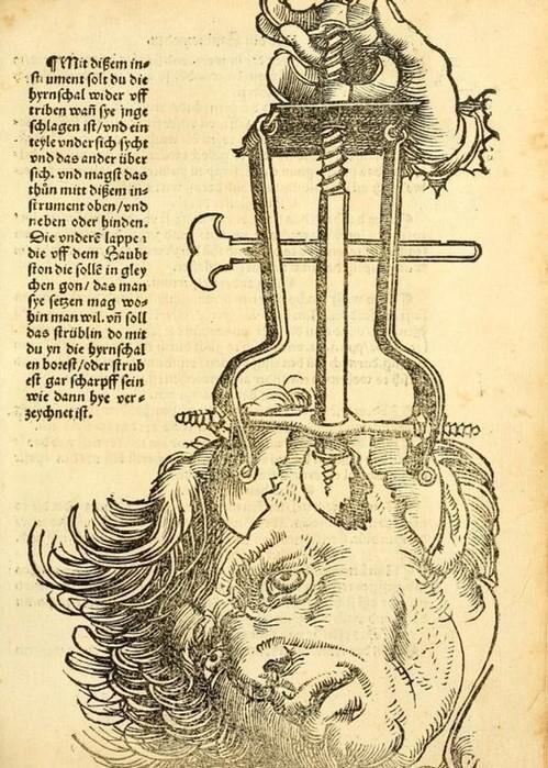Нейрохирургия 1530 год
