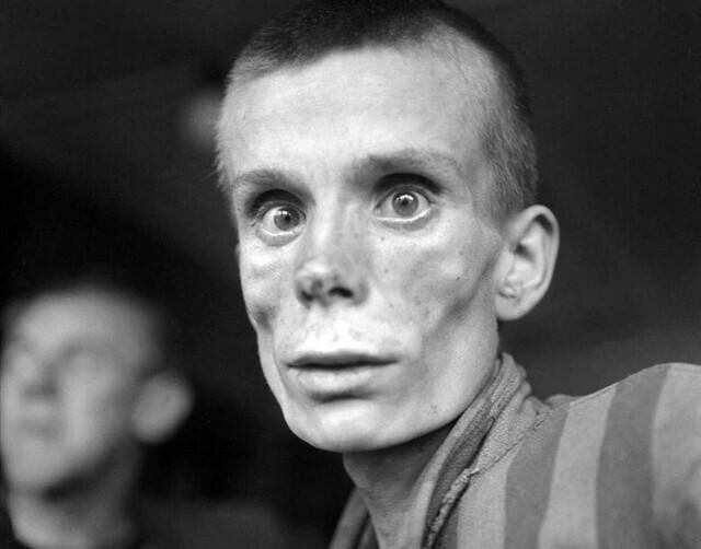 На этом фото истощенная 18-летняя русская девушка после освобождения из концлагеря Дахау, 1945 год