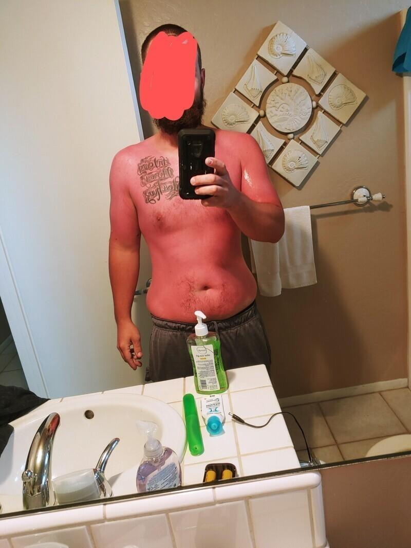 """""""Думал, что при 20 C солнцезащитный крем не нужен. О, как жестоко я ошибался!"""""""