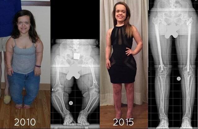 Пациентка с карликовостью с помощью операций увеличила длину ног и рук на 10 см