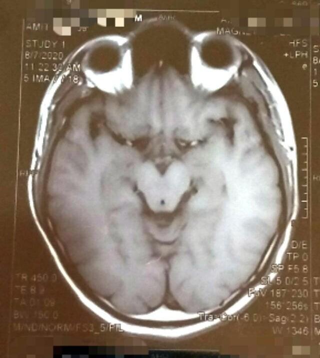 МРТ мозга напоминает Гринча