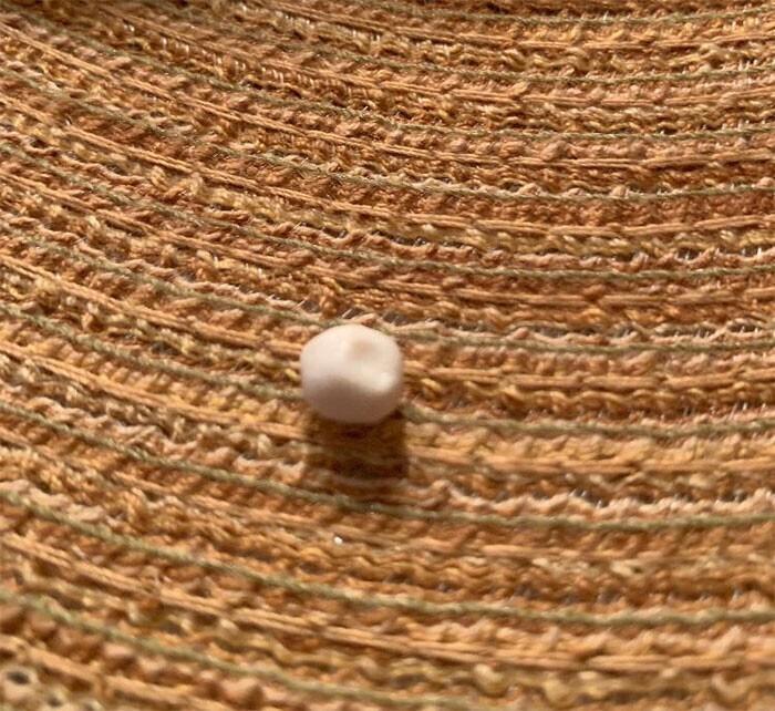 Внутри вареной клешни камчатского краба обнаружен небольшой твердый шарик, размером примерно с горошину. Что это такое?