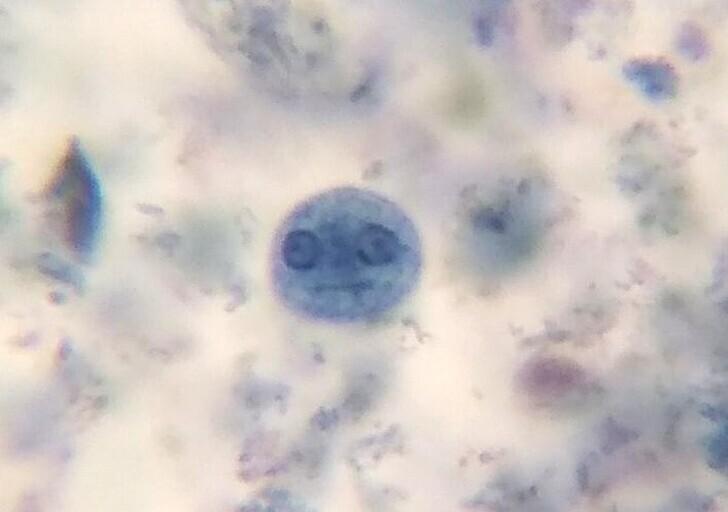 Амеба через микроскоп выглядит, как лицо