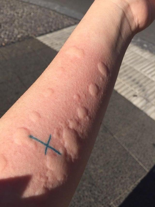 Выяснилось, что у меня аллергия буквально на всё