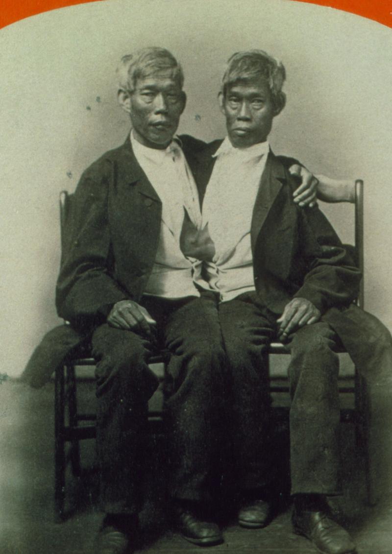 Чанг и Энг Банкеры из Таиланда, благодаря которым появилось название феномена сиамских близнецов