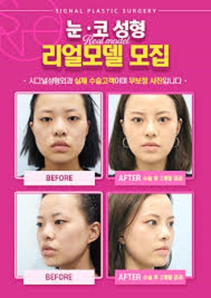 Корейская индустрия красоты считается самой развитой во всем мире - ежегодно здесь проводят миллионы операций по исправлению внешности