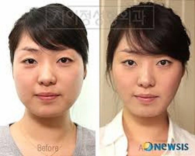 """""""Пластическая хирургия это как наркомания, - сказала корейская красавица, победительница конкурсов в одном из интервью. - Если вы исправили глаза, то вам тут же захочется исправить и нос""""."""