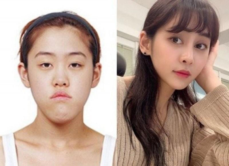50% корейских подростков заявили, что мечтают о пластической операции
