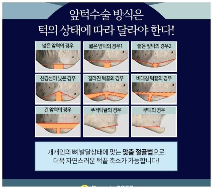"""Тонкий нос, узкий подбородок, большие глаза, никаких щек, """"вишневые"""" губки - это обязательный атрибут современного корейца"""