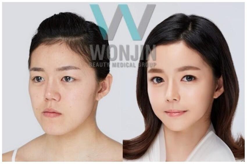"""Одна из обязательных операций - избавление от так называемых """"корейских"""" глаз - южнокорейские родители дарят своим дочерям-подросткам деньги на операцию, которая называется """"двойная хирургия глаз"""""""