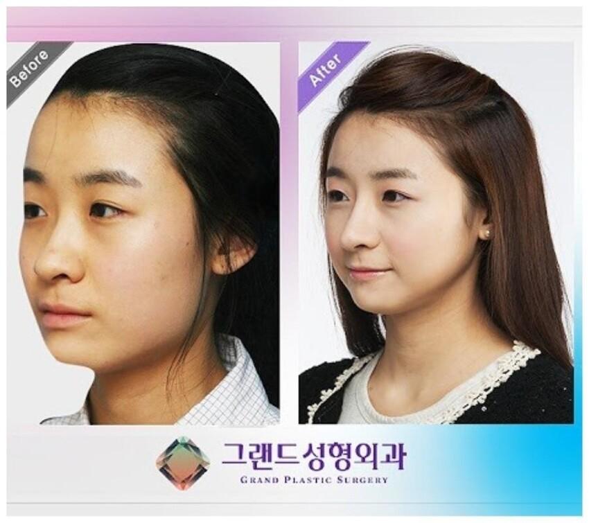 Родители практически в обязательном порядке дарят детям на 18 лет сертификат в клинику пластической хирургии - у кого носик подкачал, у кого губы не такие