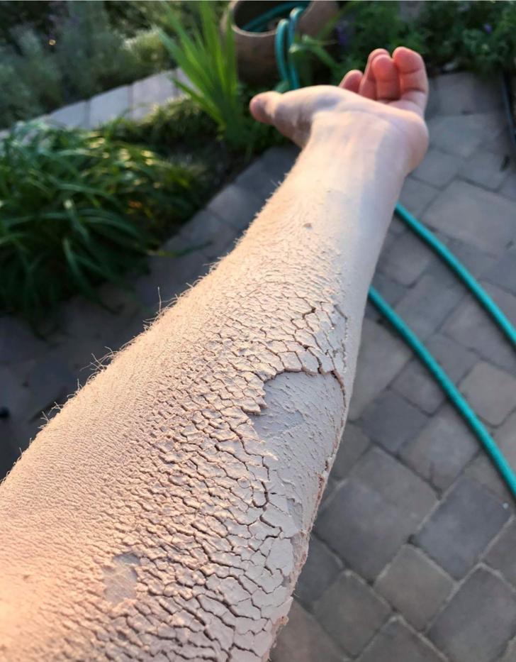 Кажется, что кожа высохла и потрескалась, но это всего лишь слой древесной пыли