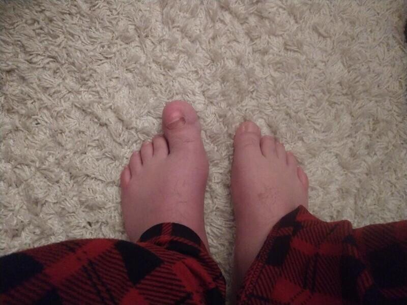 «Большой палец на моей левой ноге массивней, чем на правой»