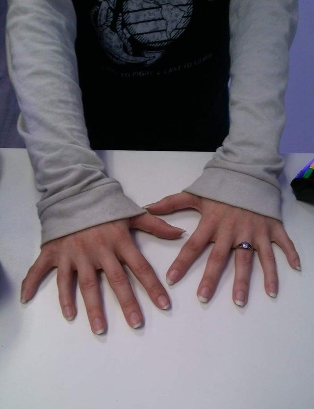 У этой женщины по шесть пальцев на каждой руке