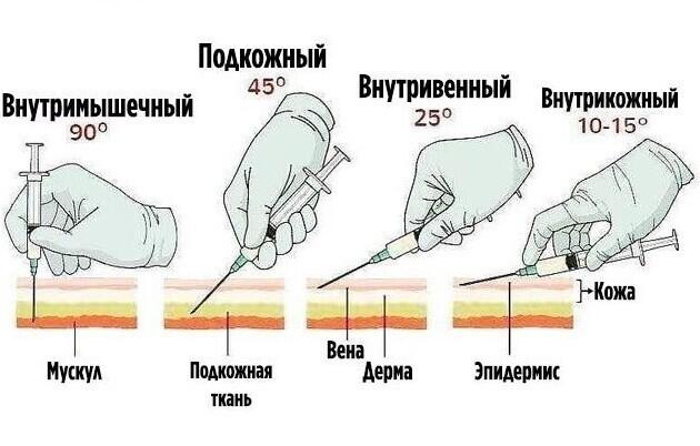 Как делать инъекции