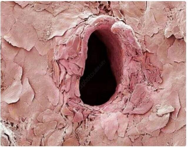 След после укола иглы на коже, снятый с помощью микроскопа