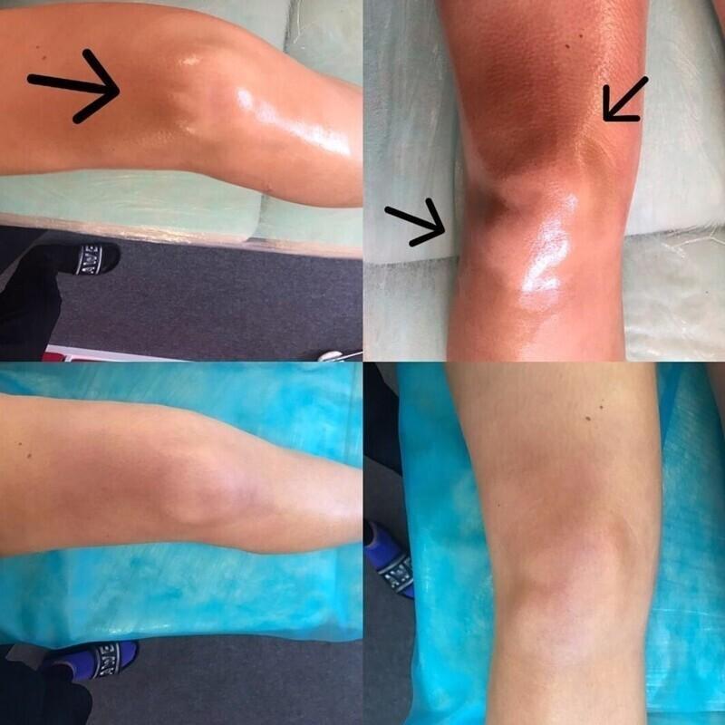 Некоторые девушки считают свои колени некрасивыми: они прибегают к массажам и даже пластическим операциям, чтобы исправить форму