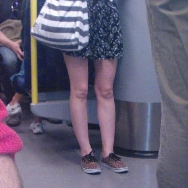 Новое женское помешательство: перекраиваем коленки